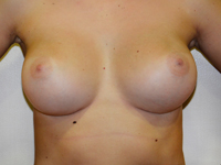 Case 78 : Muscle splitting biplane breast augmentation, Mentor® anatomical implants 330 cc