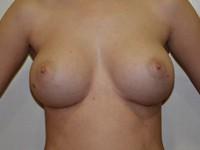 Case 79 : Muscle splitting biplane breast augmentation, Mentor® anatomical implants 380 cc