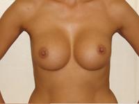 Case 8 : Subfascial breast augmentation, Mentor® anatomical implants 330 cc