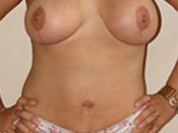 Cazul 1: Mamopexie cu augmentare mamara (implanturi anatomice Mentor 390 cm³) si lipoabdominoplastie
