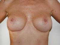 Cazul 15: Augmentare mamara (tehnica muscle splitting biplane), implanturi anatomice Mentor® 380 cm³