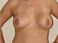 Case 3 : Augmentation mastopexy (Mentor anatomical implants 390 cm³) and lipoabdominoplasty