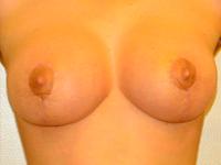Caz 8: Mamopexie cu augmentare mamara, implanturi rotunde Mentor® 240 cm³