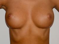 Caz 10: Augmentare mamara (tehnica muscle splitting biplane), implanturi anatomice Mentor® 300 cm³