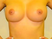 Caz 11: Augmentare mamara (tehnica muscle splitting biplane), implanturi anatomice Mentor® 330 cm³