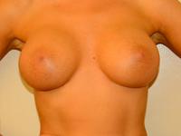 Caz 14: Augmentare mamara (tehnica muscle splitting biplane), implanturi anatomice Mentor® 330 cm³