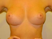 Caz 15: Augmentare mamara (tehnica muscle splitting biplane), implanturi anatomice Mentor® 330 cm³