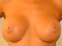 Caz 16: Augmentare mamara (tehnica muscle splitting biplane), implanturi anatomice Mentor® 330 cm³