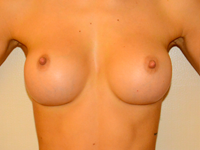 Caz 18: Augmentare mamara (tehnica muscle splitting biplane), implanturi anatomice Mentor® 330 cm³