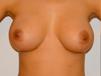 Case 2: Muscle splitting biplane breast augmentation, Mentor® anatomical implants 345 cc