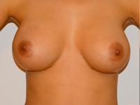 Caz 2: Augmentare mamara (tehnica muscle splitting biplane), implanturi anatomice Mentor® 345 cm³