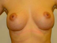 Caz 20: Augmentare mamara (tehnica muscle splitting biplane), implanturi anatomice Mentor® 330 cm³