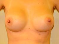 Caz 21: Augmentare mamara (tehnica muscle splitting biplane), implanturi anatomice Mentor® 330 cm³