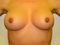 Caz 22: Augmentare mamara (tehnica muscle splitting biplane), implanturi anatomice Mentor® 380 cm³