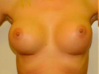 Caz 24: Augmentare mamara (tehnica muscle splitting biplane), implanturi anatomice Mentor® 300 cm³
