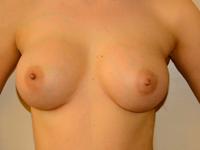Caz 25: Augmentare mamara (tehnica muscle splitting biplane), implanturi anatomice Mentor® 330 cm³