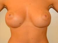 Caz 27: Augmentare mamara (tehnica muscle splitting biplane), implanturi anatomice Mentor® 390 cm³