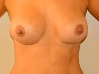 Caz 29: Augmentare mamara (tehnica muscle splitting biplane), implanturi anatomice Mentor® 380 cm³