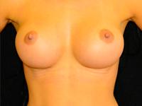 Caz 3: Augmentare mamara (tehnica muscle splitting biplane), implanturi anatomice Mentor® 345 cm³