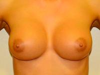 Caz 31: Augmentare mamara (tehnica muscle splitting biplane), implanturi anatomice Mentor® 330 cm³