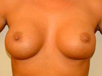 Caz 32: Augmentare mamara (tehnica muscle splitting biplane), implanturi anatomice Mentor® 330 cm³