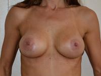 Caz 33: Augmentare mamara (tehnica muscle splitting biplane), implanturi anatomice Mentor® 380 cm³