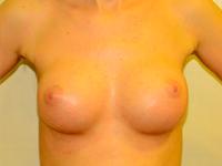 Caz 39: Augmentare mamara (tehnica muscle splitting biplane), implanturi anatomice Mentor® 225 cm³