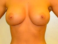 Caz 4: Augmentare mamara (tehnica muscle splitting biplane), implanturi anatomice Mentor® 330 cm³