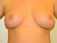 Caz 40: Augmentare mamara (tehnica muscle splitting biplane), implanturi anatomice Mentor® 310 cm³