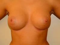 Caz 41: Augmentare mamara (tehnica muscle splitting biplane), implanturi anatomice Mentor® 330 cm³