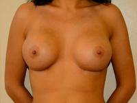 Caz 46: Augmentare mamara (tehnica muscle splitting biplane), implanturi anatomice Mentor® 390 cm³
