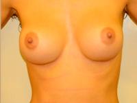 Caz 47: Augmentare mamara (tehnica muscle splitting biplane), implanturi anatomice Mentor® 330 cm³