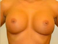 Caz 48: Augmentare mamara (tehnica muscle splitting biplane), implanturi anatomice Mentor® 380 cm³