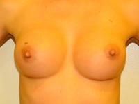 Caz 58: Augmentare mamara (tehnica muscle splitting biplane), implanturi anatomice Mentor® 300 cm³