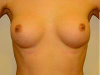 Caz 61: Augmentare mamara (tehnica muscle splitting biplane), implanturi anatomice Mentor® 260 cm³