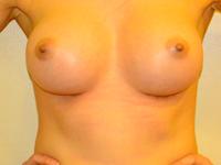 Caz 62: Augmentare mamara (tehnica muscle splitting biplane), implanturi anatomice Mentor® 330 cm³