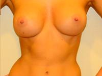 Caz 63: Augmentare mamara (tehnica muscle splitting biplane), implanturi anatomice Mentor® 330 cm³