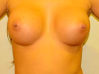 Caz 64: Augmentare mamara (tehnica muscle splitting biplane), implanturi anatomice Mentor® 380 cm³