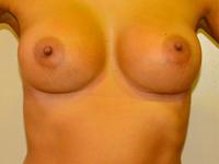 Caz 65: Augmentare mamara (tehnica muscle splitting biplane), implanturi anatomice Mentor® 380 cm³