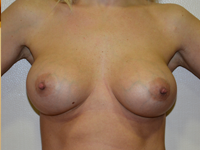 Caz 66: Augmentare mamara (tehnica muscle splitting biplane), implanturi anatomice Mentor® 345 cm³
