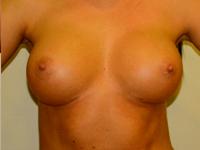 Caz 68: Augmentare mamara (tehnica muscle splitting biplane), implanturi anatomice Mentor® 300 cm³