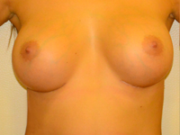 Caz 69: Augmentare mamara (tehnica muscle splitting biplane), implanturi anatomice Mentor® 380 cm³