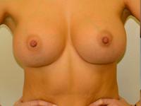 Caz 7: Augmentare mamara (tehnica muscle splitting biplane), implanturi anatomice Mentor® 380 cm³