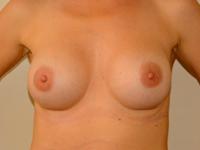 Caz 71: Augmentare mamara (tehnica muscle splitting biplane), implanturi anatomice Mentor® 380 cm³
