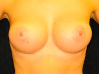 Caz 72: Augmentare mamara (tehnica muscle splitting biplane), implanturi anatomice Mentor® 380 cm³