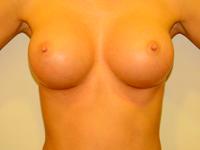 Caz 8: Augmentare mamara (tehnica muscle splitting biplane), implanturi anatomice Mentor® 290 cm³