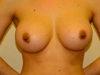 Caz 9: Augmentare mamara (tehnica muscle splitting biplane), implanturi anatomice Mentor® 330 cm³