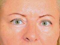 Caz 4 - Blefaroplastia
