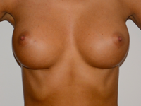 Case 10: Muscle splitting biplane breast augmentation, Mentor® anatomical implants 300 cc