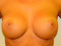 Case 17: Muscle splitting biplane breast augmentation, Mentor® anatomical implants 300 cc